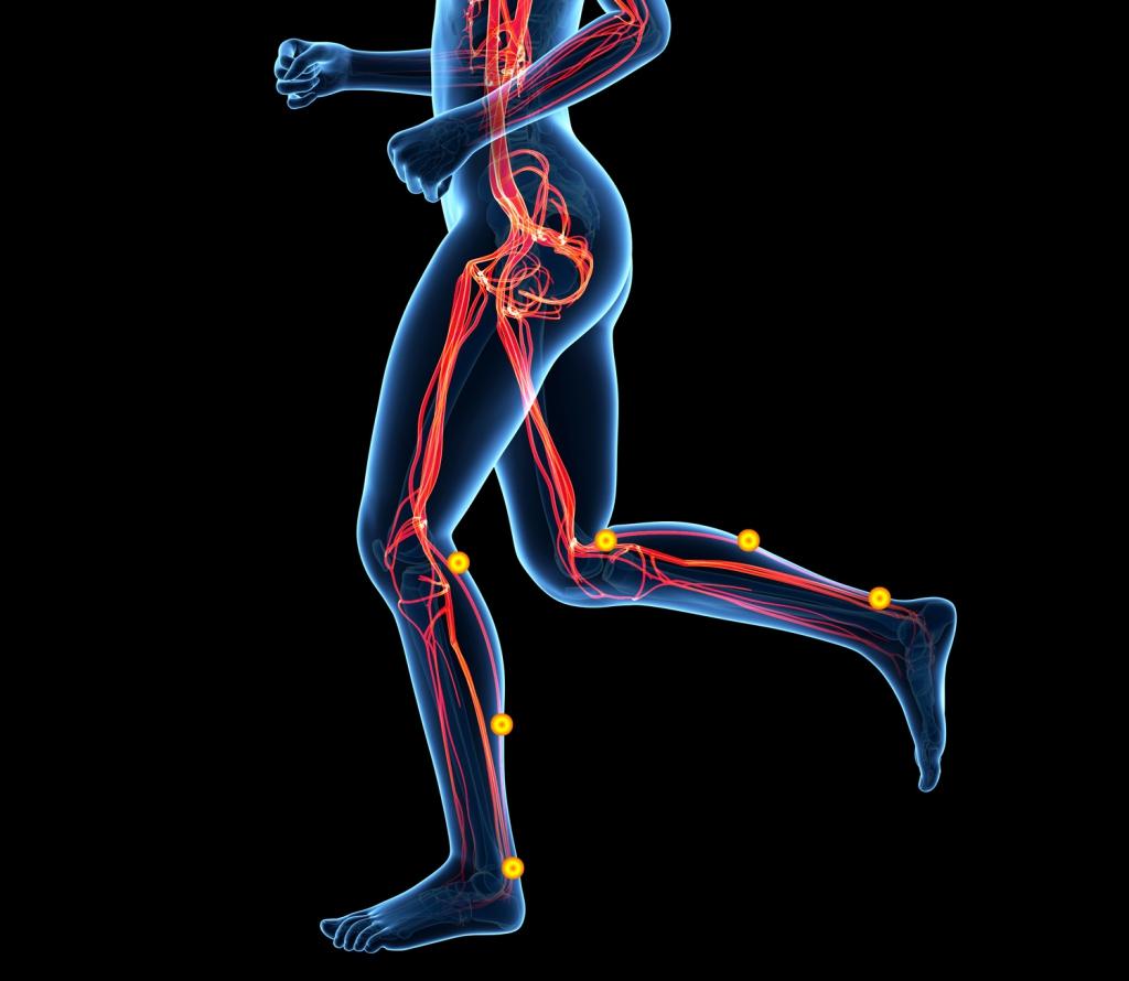 Peripheral-Arterial-Occlusive-Disease,-PAOD